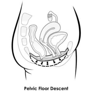 Pelvic floor descent
