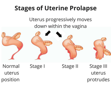 Stages of uterine prolapse