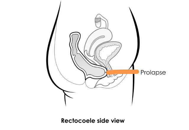 Rectocele prolapse
