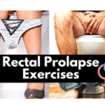 Rectal Prolapse Exercises